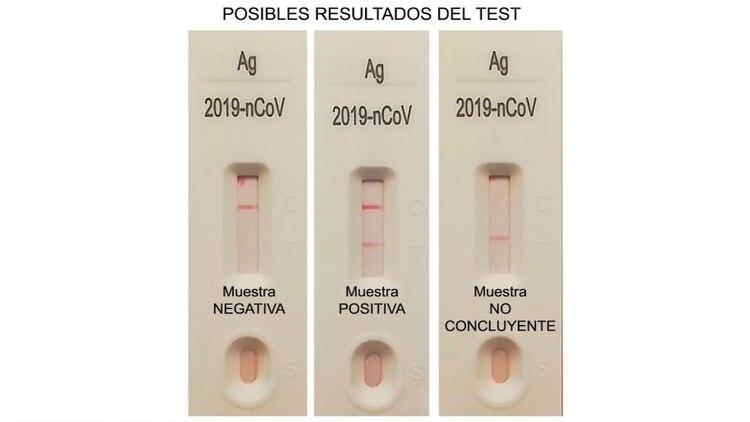 Como este coronavirus es tan silencioso como transmisible, hace falta un despliegue masivo de análisis. (Ministerio de sanidad España)