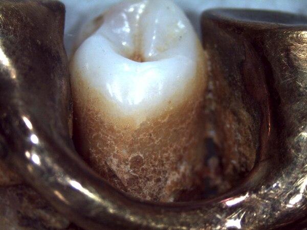 Detalle de un diente y de la prótesis metálica del dictador. (Dr. Philippe Charlier via Le Monde)