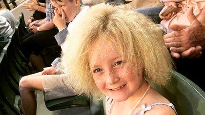 La pequeña Shila, padece el síndrome y es muy popular en redes sociales por mostrar la cotidianidad de su cabello