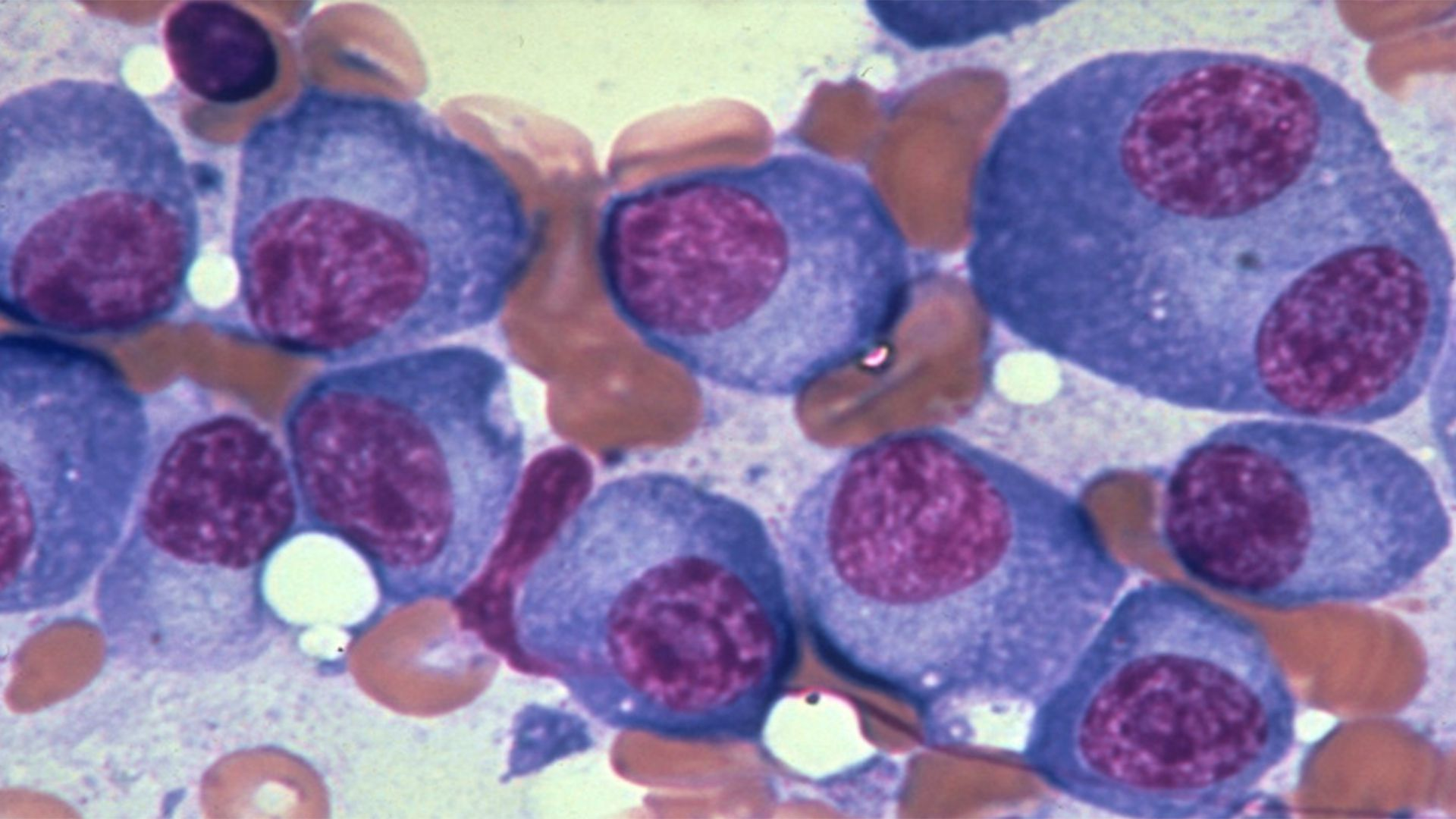 El mieloma múltiple se forma por el crecimiento anormal y acelerado de los plasmocitos, dañando a las células encargadas de producir anticuerpos para proteger al organismo