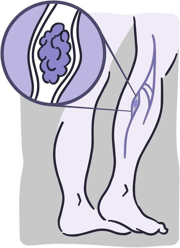 trombosis NHI