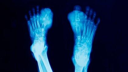 Radiografía de una persona afectada por una inflamación de sus miembros inferiores, es decir con la enfermedad de gota: afección para la cual se prescribe hoy la colchicina. El fármaco hasta ahora se lo prescribe para procesos inflamatorios agudos (Shutterstock)