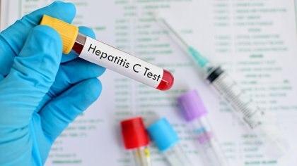 Ya hay medicamentos para tratar y curar la hepatitis C (iStock)