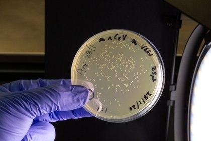 Una placa de petri, que contiene plásmidos y replicones en el laboratorio del profesor Robin Shattock's del Imperial College of London (Thomas Angus/via REUTERS)