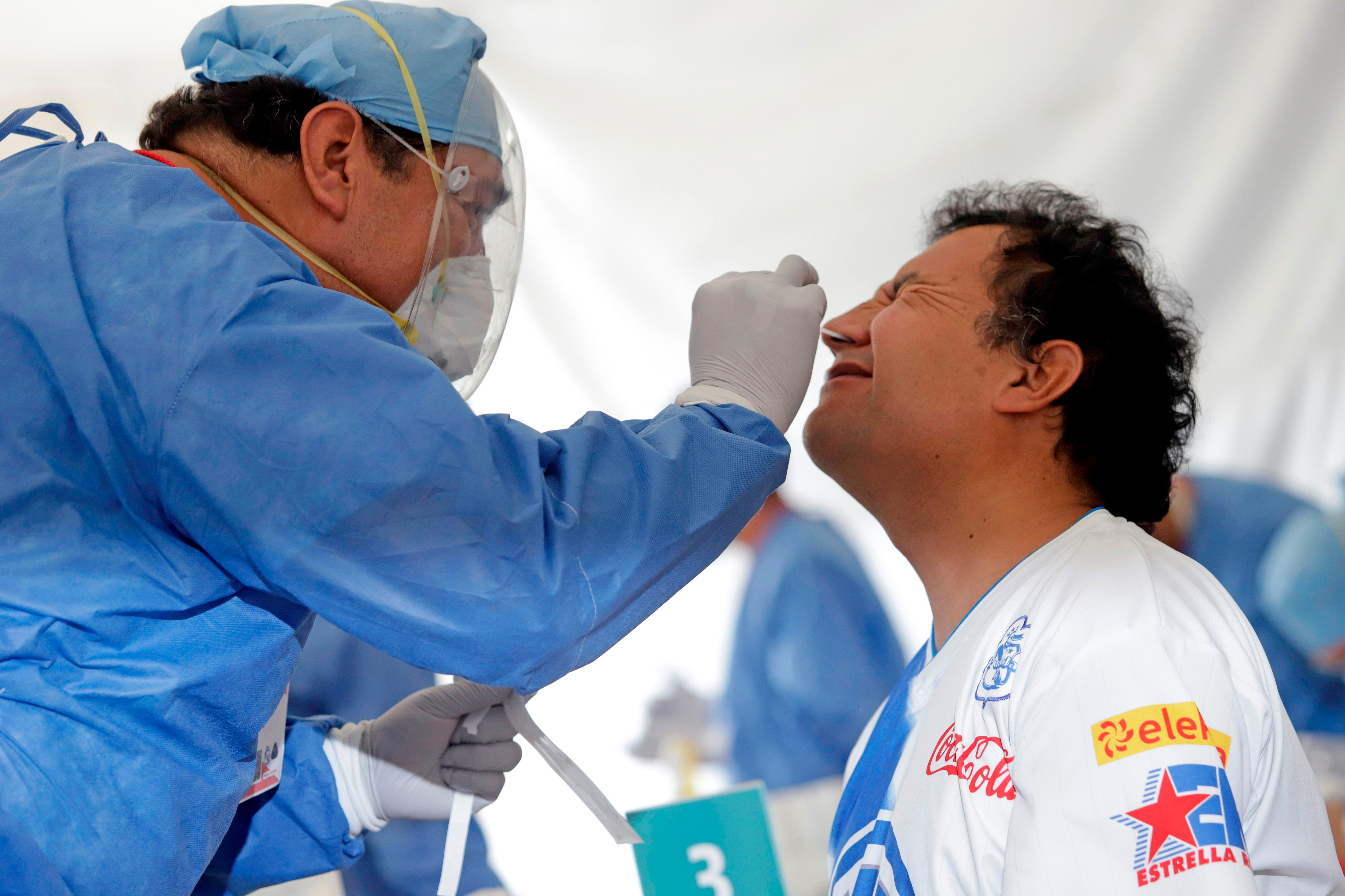 La pérdida súbita del olfato, acompañada del sabor (el olfato da el 80% del sabor) se manifiesta como consecuencia de que el SARS-CoV-2 ingresa por las fosas nasales (Foto: Hilda Ríos/EFE)