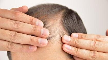 La eliminación quirúrgica de la fuente de las hormonas del estrés en los ratones revirtió el efecto de la caída del pelo.