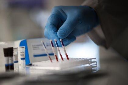 Científicos de la Universidad de San Martín, en la Provincia de Buenos Aires presentaron nuevos kits de diagnóstico rápido de coronavirus (EFE/Juan Ignacio Roncoroni)