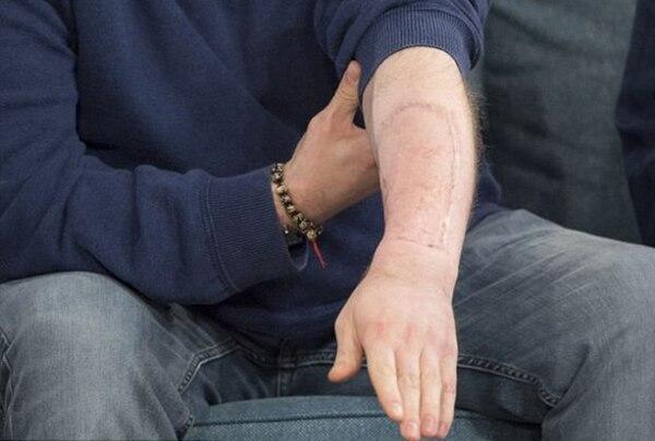 Los médicos le sacaron piel de su brazo para construir su pene desde cero