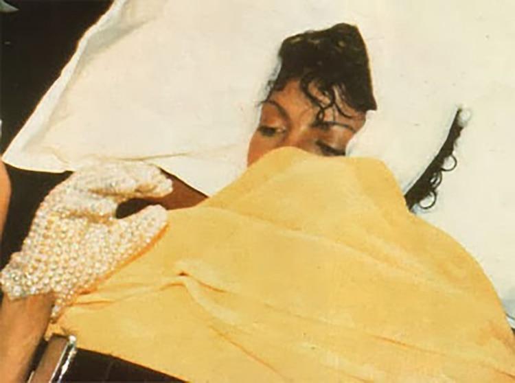 Jackson vendado después de que parte de su pelo se prendiera fuego mientras grababa una publicidad