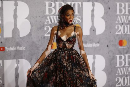 Winnie Harlow arrives for the Brit Awards at the O2 Arena in London, Britain, February 20, 2019. REUTERS/Peter Nicholls