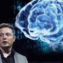 Musk y su nuevo proyecto dentro del cerebro (MB)
