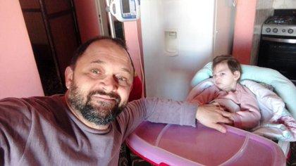 """Daniel y Matilda. La nena de dos años lleva adelante una dieta cetogénica que permite controlar las convulsiones. """"Se alimenta cuatro veces por día, a través de un botón gástrico y con una bomba de infusión, que es la que hace que el alimento vaya circulando"""", explica su padre."""