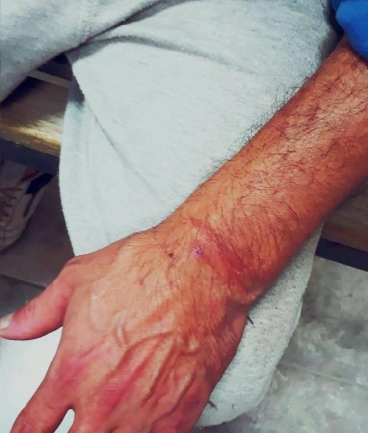 Los brazos del imputado presentaron heridas