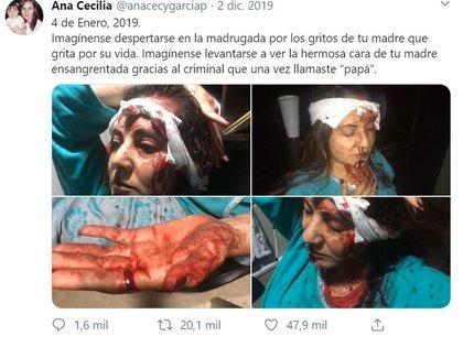 Así fue golpeada Abril en una riña con Juan Carlos antes de su muerte. (Foto: Twitter)