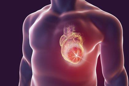 Los paros cardíacos no traumáticos (PCNT) extra-hospitalarios ocurren mayormente en los domicilios, son reportados por los servicios de ambulancias, y representan a muchas personas que probablemente padecieron síntomas (dolor de pecho, falta de aire, síncope, arritmias), pero no tomaron contacto con el sistema de salud (Shutterstock)