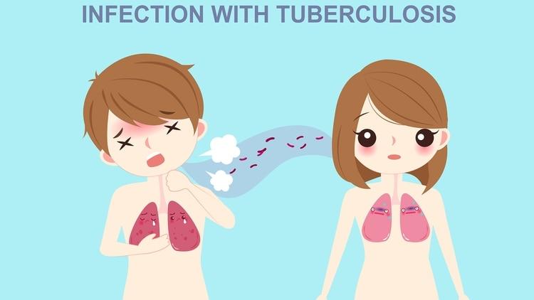 El contagio de esta enfermedad se produce cuando quien la padece elimina pequeñas gotas de saliva (gotas de Fludgge) que contienen bacilos al toser, hablar o expectorar