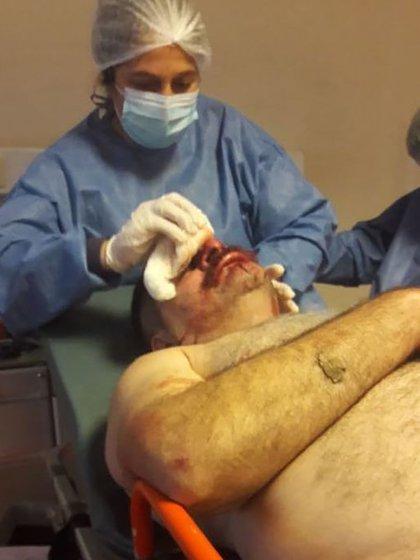Mancini sufrió varias heridas