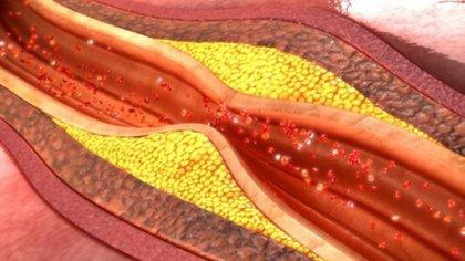 Cuanto más bajo tengamos controlado el colesterol, el riesgo de sufrir un infarto será menor
