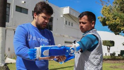 Sergio Rodríguez, un mexicano beneficiario de dos prótesis asegura que le cambiaron la vida (Foto / Gentileza de Gino Tubaro).
