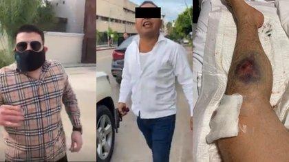 Escolta de la hija del gobernador disparo contra la ex pareja de María Escandón (Foto: Captura de Pantalla)