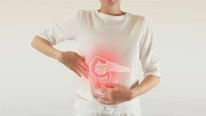 Los síntomas del cáncer de páncreas suelen manifestarse hasta que la enfermedad ya está avanzada y se ha regado por otras partes del cuerpo (Foto: Shutterstock)