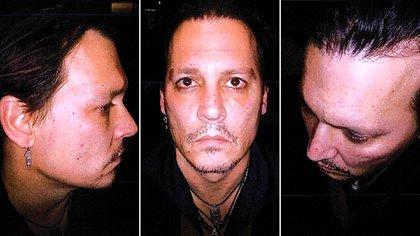 Fotos de Johnny Depp golpeado tras una supuesta pelea con Amber Heard