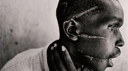 Hombre mostrando las marcas de machetes que quedaron en su rostro