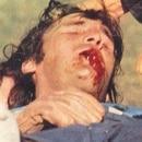 Hugo Gatti fractura de mandibula