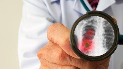 La enzima convertidora de angiotensina 2 es una enzima unida a la superficie externa de las células en los pulmones, arterias, corazón, riñón e intestinos (Shutterstock)