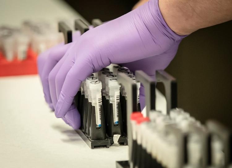 La ciencia trabaja para acercarse a la cura del coronavirus (REUTERS)
