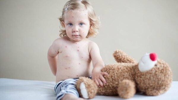 La recomendación es consultar al médico inmediatamente ante la presencia de sarpullido y fiebre (Getty)