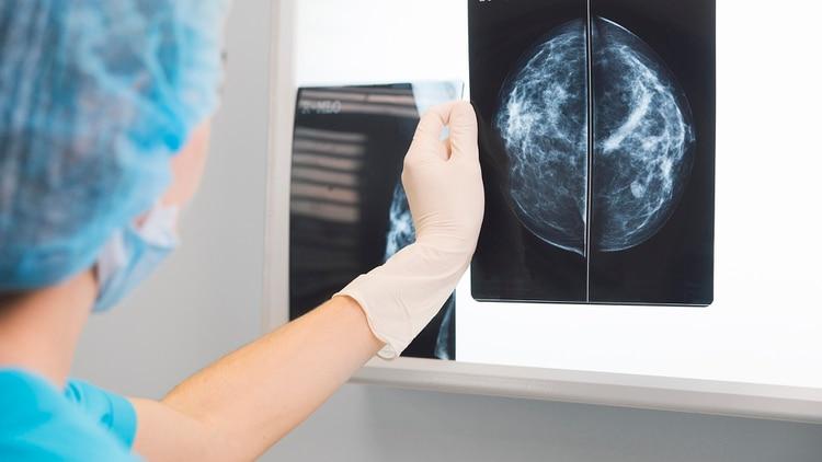 En el país se detectan alrededor de 20 mil nuevos casos de cáncer de mama por año (Getty)