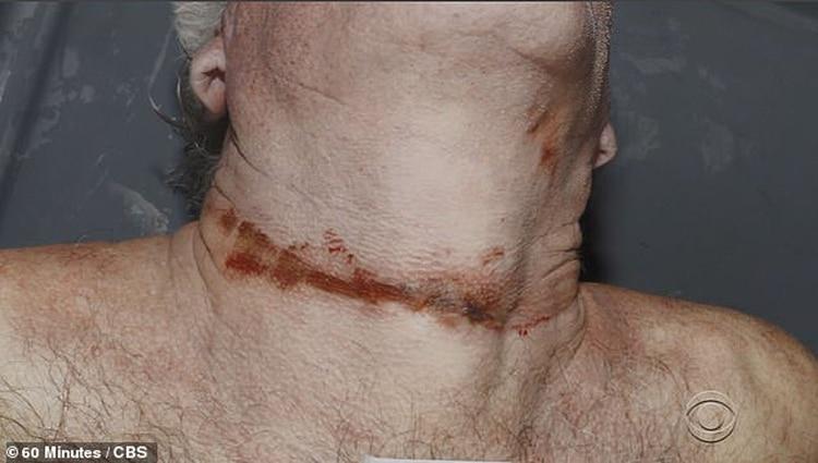 La marca en el cuello. Los forenses aseguran que se ahorcó, el perito de la familia dice que fue estrangulado (Gentileza 60 Minutes/CBS)