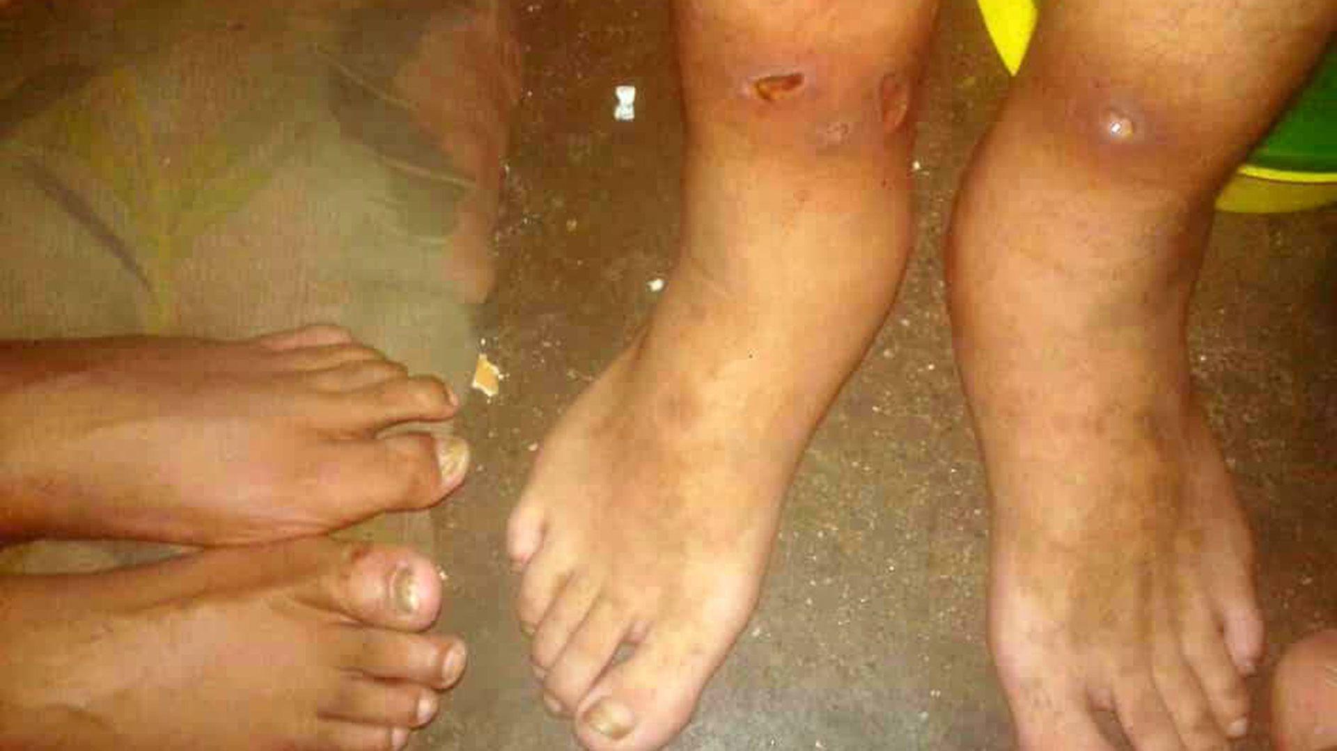 Lastimaduras en las piernas de un preso