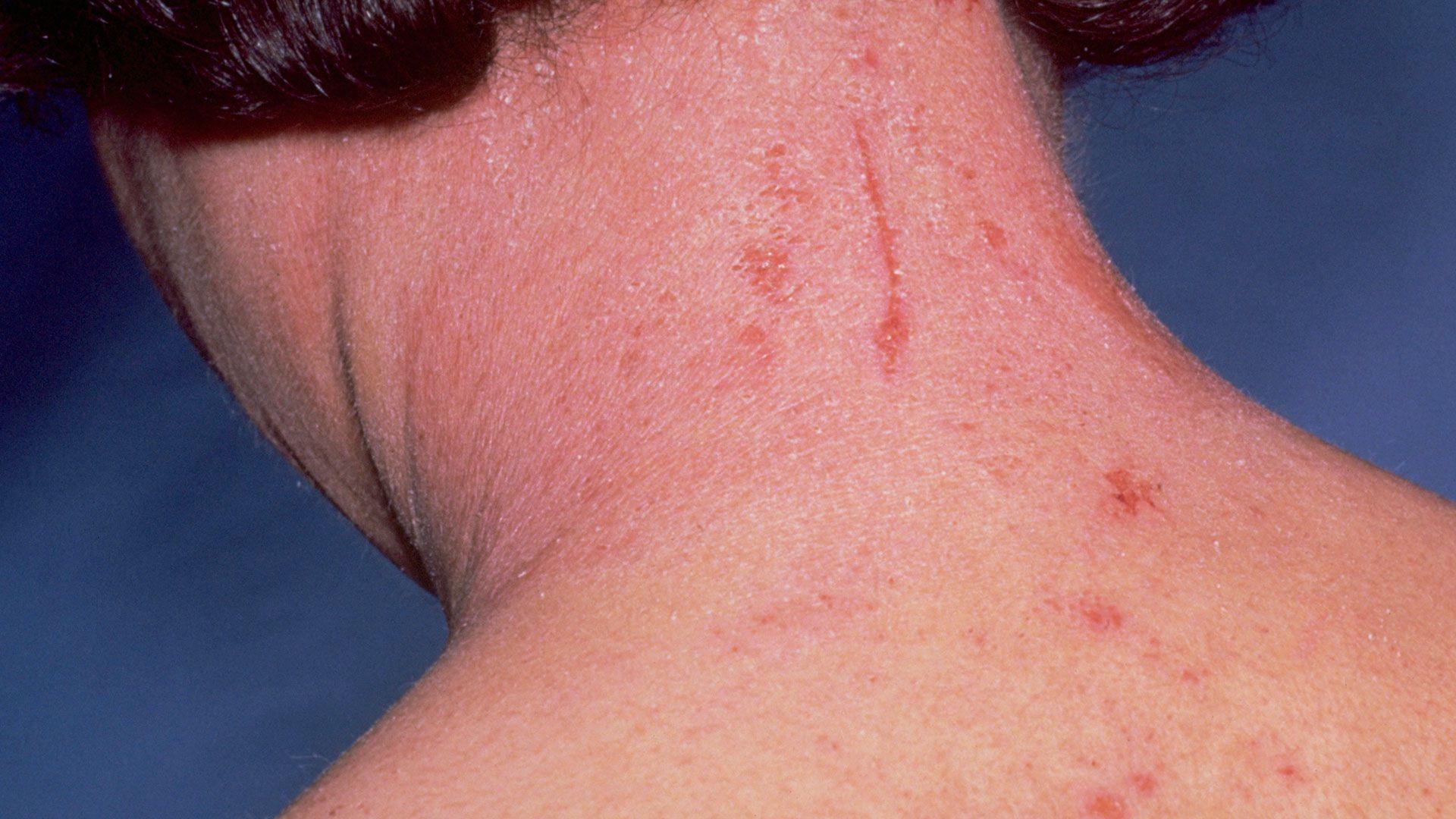 anafilaxia alergia