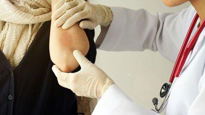 Los síntomas más comunes incluyen piel reseca, escamosa y con picazón (Shutterstock)