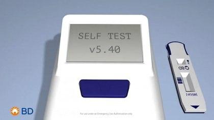 En Estados Unidos este test ya se está probando con eficacia