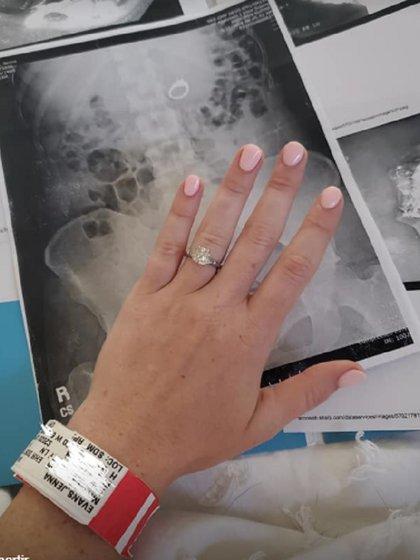 Ahora, Jenna se quita el anillo antes de acostarse (Foto: Facebook @JennaEvans)