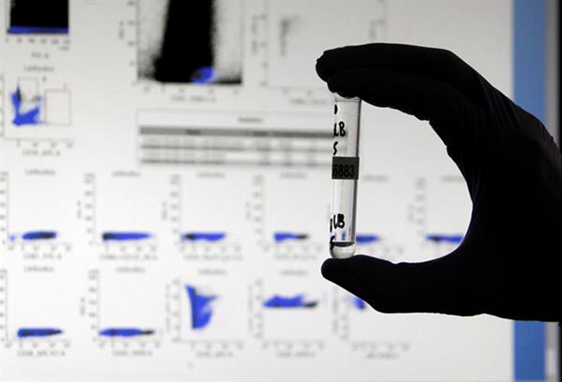 anticuerpos Un nuevo test que logra detectar anticuerpos al virus hasta hoy invisibles