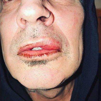 Tommy Lee acusó a su hijo Brandon de pegarle una trompada que le dejó el labio hinchado (Instagram Tommy Lee)