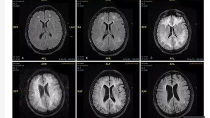 Las imágenes del cerebro muestran una disminución en los receptores de dopamina (D2) en el cerebro de una persona adicta a la cocaína en comparación con una persona que no consume drogas (Gentileza The Sun)