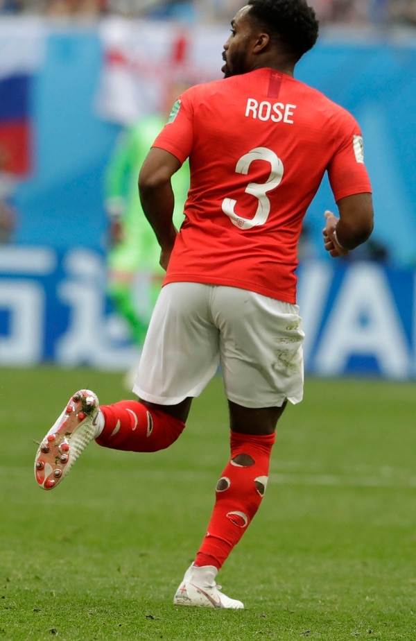 England's Danny Rose wears socks with holes cut in them, supposedly to prevent cramps, during the third place match between England and Belgium at the 2018 soccer World Cup in the St. Petersburg Stadium in St. Petersburg, Russia, Saturday, July 14, 2018. (AP Photo/Petr David Josek)