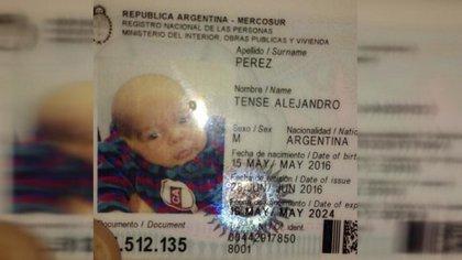 Tense Alejandro Pérez