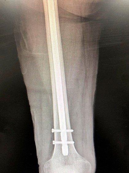 La placa que muestra cómo quedó la pierna de Laurencio