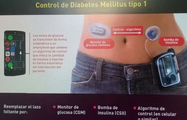 El sistema inyecta automáticamente la cantidad de insulina que la persona necesita en cada momento