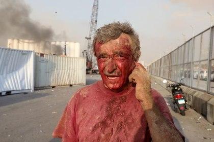 Foto del martes de un hombre ensangrentado tras una explosión en Beirut Ago 4, 2020. REUTERS/Mohamed Azakir