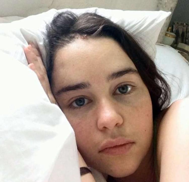 """Emilia Clarke de """"Game of Thrones"""" mostró imágenes de cuando estuvo internada y al borde de la muerte por una aneurisma cerebral"""