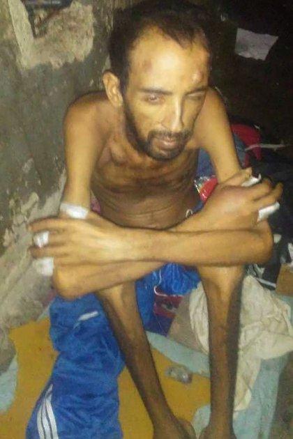 Un preso con varios golpes y desnutrido