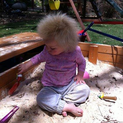 El cabello no crece hacia abajo sino hacia afuera del cuero cabelludo en múltiples direcciones