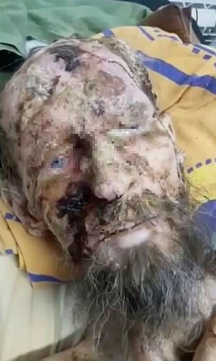 """El enfermo contó que sobrevivió bebiendo su propia orina. Los médicos explicaron que presentaba """"tejido podrido"""", y """"lesiones severas"""" (Foto: The Siberian Times)"""